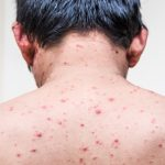 Great Back Acne Remedies That Really Help