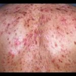 Tips for Getting Rid of Back Acne