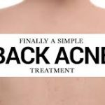 What's the Best Back Acne Treatment?