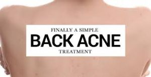 treat back acne