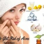 7 Tips To Get Rid Of Acne Fast