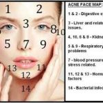 Beating Forehead Acne