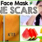 3 Unusual Treatments To Get Rid Of Acne Scars